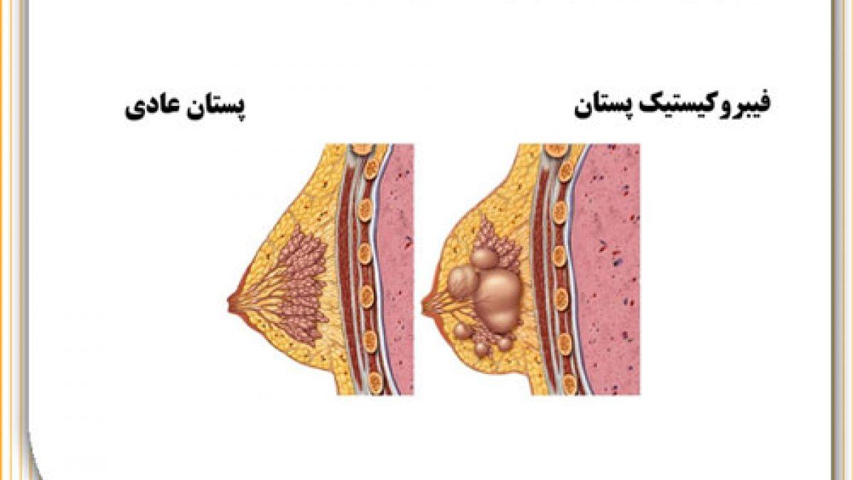 فیبروکیستیک پستان